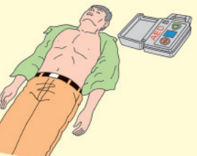 AED置く