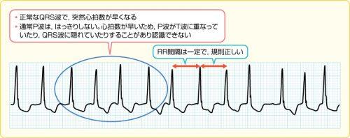 発作性上室性頻拍PSVTの心電図