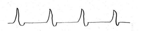 無脈性電気活動PEAの心電図波形