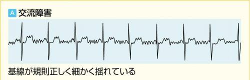 心電図のアーチファクト交流障害
