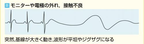 電極外れ、接触不良の心電図波形