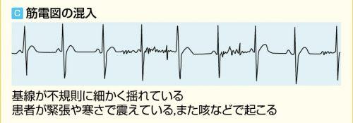 心電図の筋電図