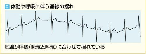 体動による心電図のアーチファクト