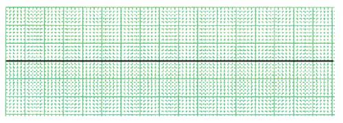 心静止の心電図