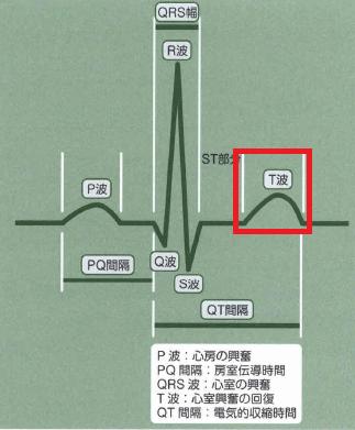 QRS-T