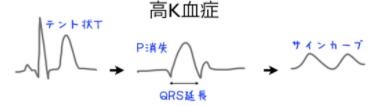 サインカーブ状 QRS 波