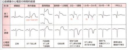 心筋梗塞心電図の時間変化