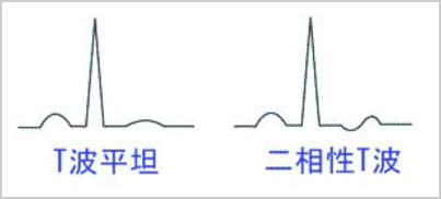 t波平坦化と2相性