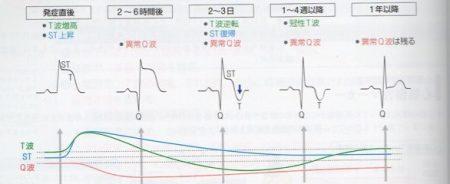 心筋梗塞の心電図時間変化