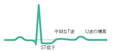 低カリウム血症心電図t波平低化