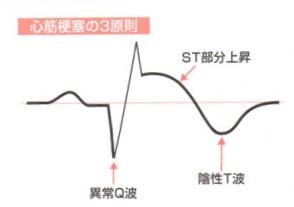 心筋梗塞心電図の3原則
