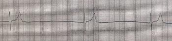 実際の高カリウム血症心電図