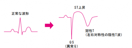 正常波形と冠性t波