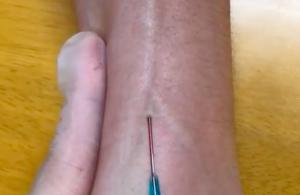 Y字の血管への静脈路確保