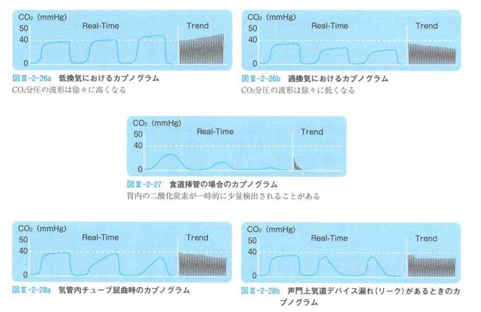 CO2モニターのカプノグラフ一覧