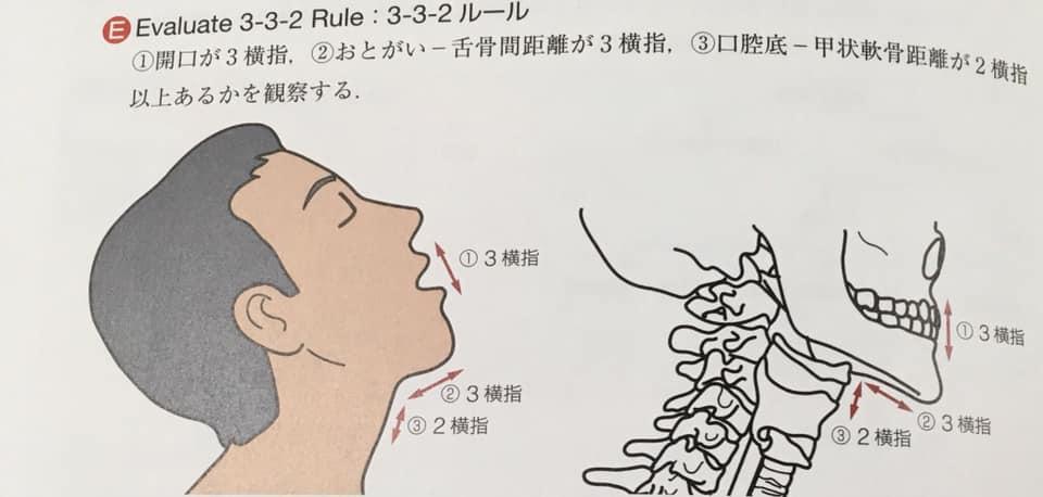 気管挿管のEvaluate3-3-2ルール