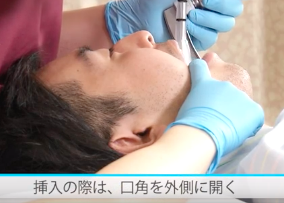 気管挿管の右口角介助