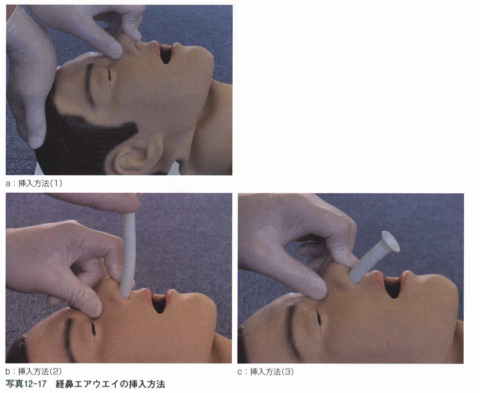経鼻エアウェイの使用方法