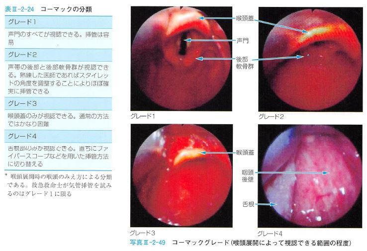 気管挿管で扱うコーマックグレードの分類