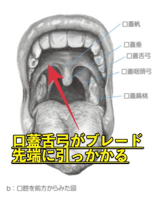 喉頭展開の口蓋舌弓
