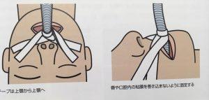 気管挿管の固定法