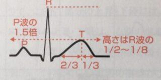 正常なt波